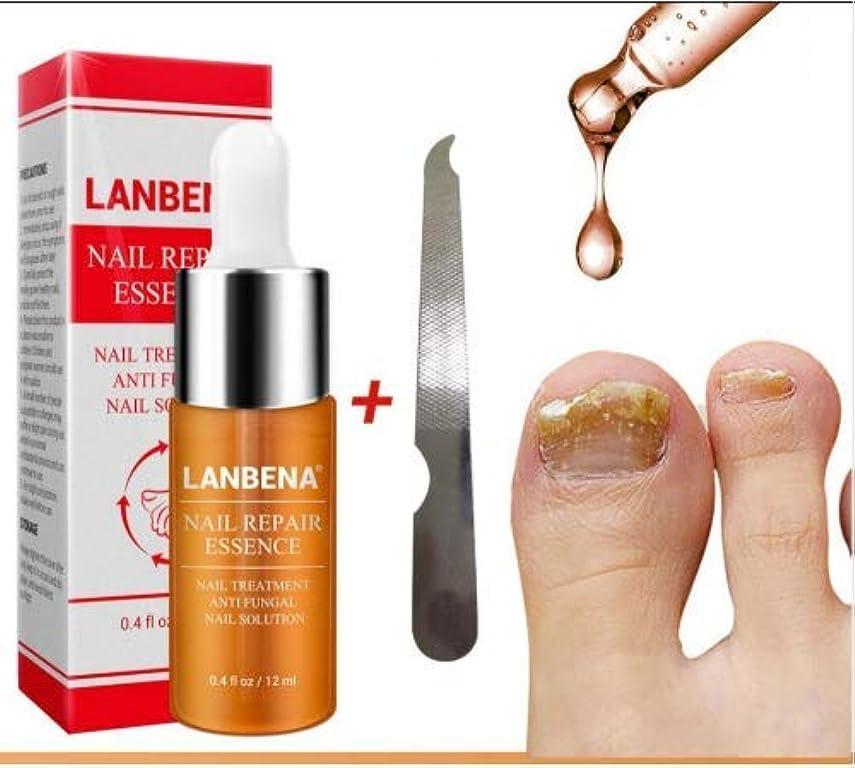 まともな環境に優しいラケットselltoJP Nail Repair Essence Serum Fungal Nail Treatment Remove Onychomycosis Toe Nail Nourishing Brightening...