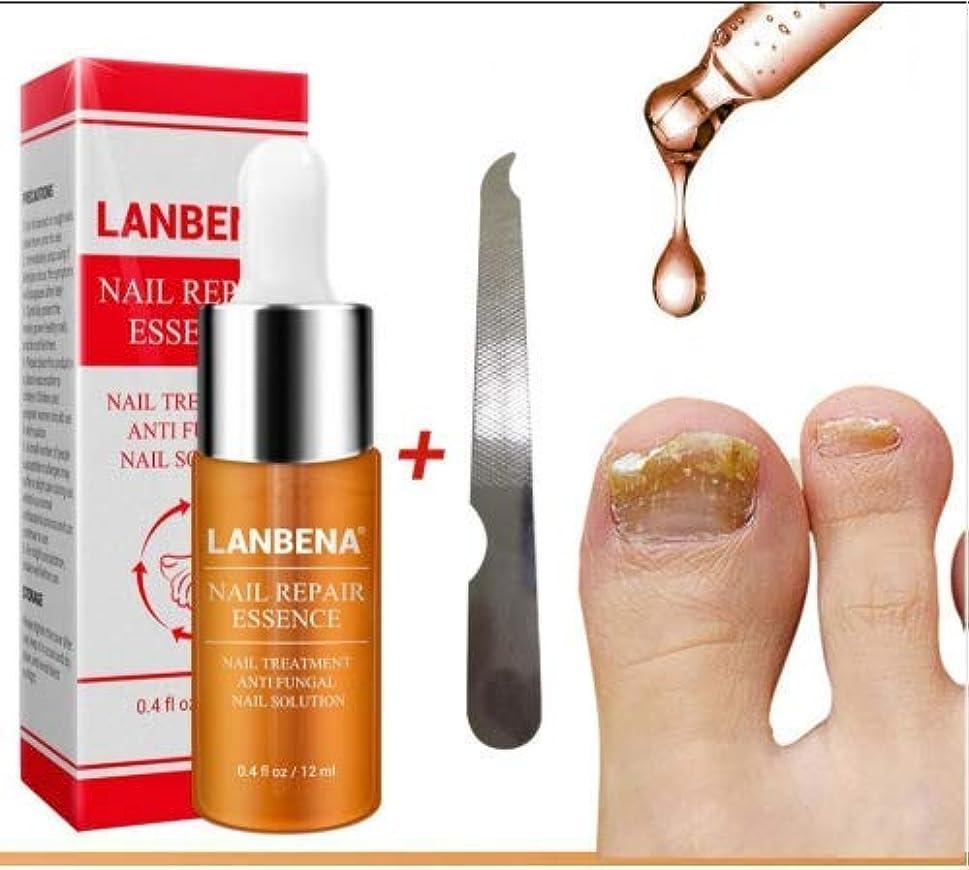科学者サイドボードマディソンselltoJP Nail Repair Essence Serum Fungal Nail Treatment Remove Onychomycosis Toe Nail Nourishing Brightening...
