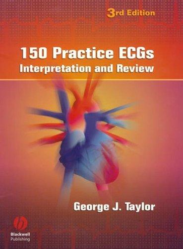 Download 150 Practice ECGs: Interpretation and Review 140510483X