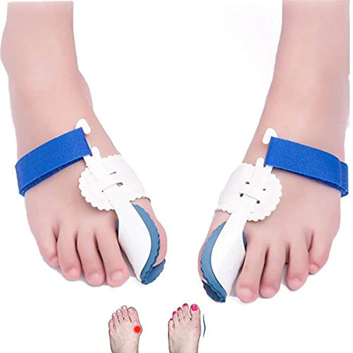 全国コールド機関車親指外反矯正器、調整可能な腱弓補正器 外反母趾腱膜補助矯正 つま先セパレータープロテクターとして機能します。 フットケア 男性&女性向け