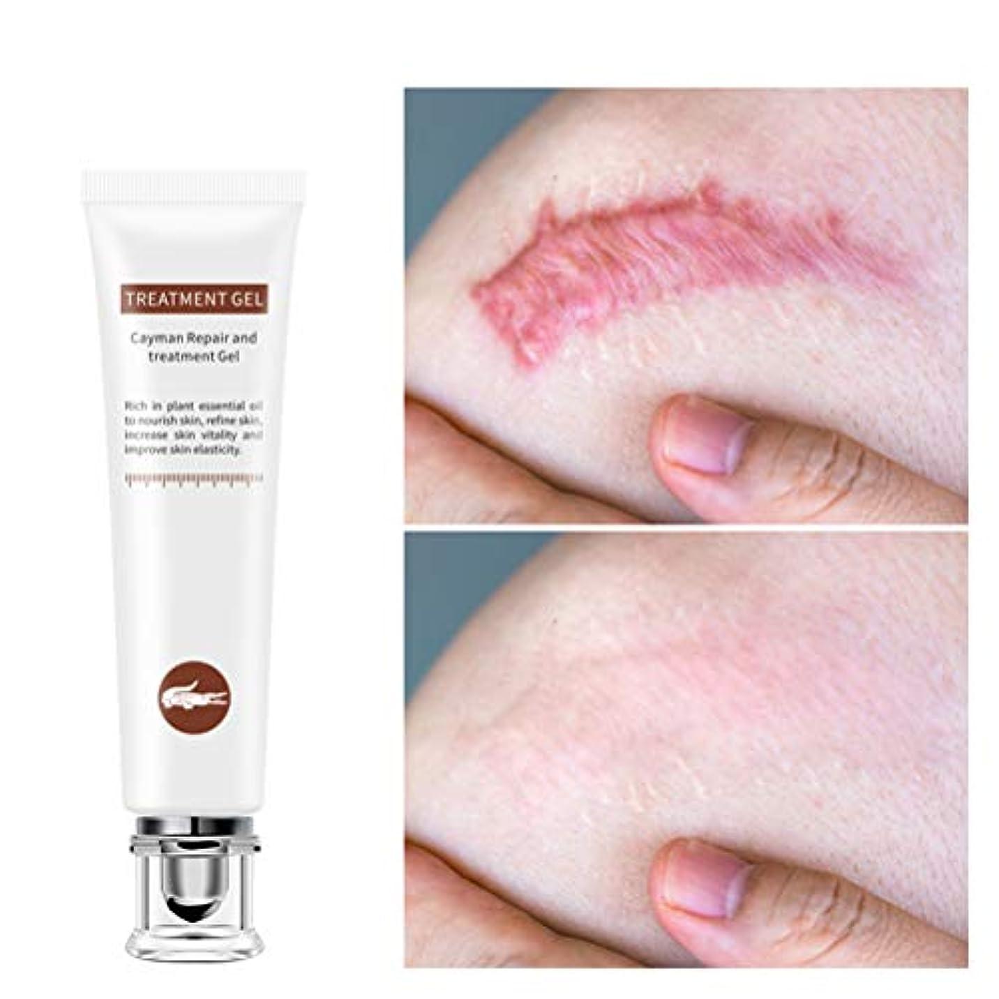 エッセイ談話活性化MAKTXL 傷跡修復クリーム、非刺激性のストレッチマーク除去クリーム修復傷跡ストレッチマークは、顔と体の妊娠傷跡クリームを除去します