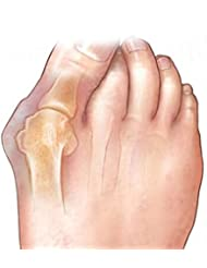 Lorny(TM) 2個フットペディキュアツール足セパレータ外反母趾シリコーンフットセパレーターフィンガービッグ足骨親指外反母趾ジェルガードマッサージャー