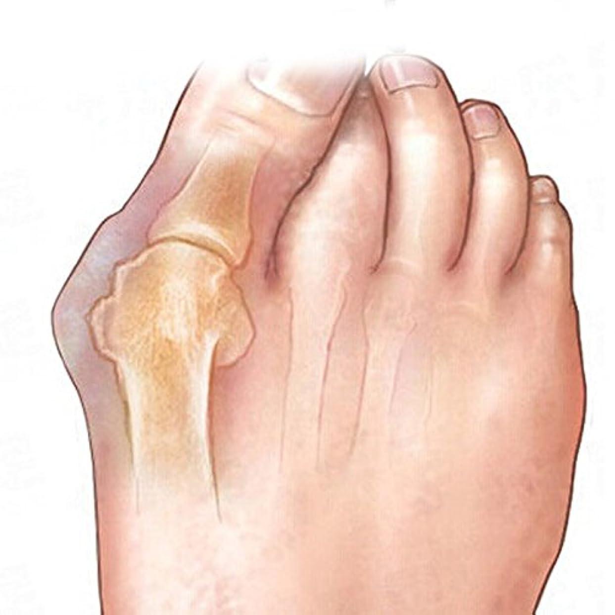 迅速確実退屈なLorny(TM) 2個フットペディキュアツール足セパレータ外反母趾シリコーンフットセパレーターフィンガービッグ足骨親指外反母趾ジェルガードマッサージャー