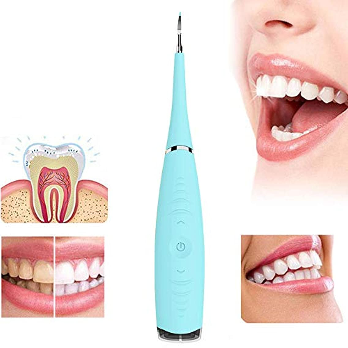 サークルを除く前任者歯をホワイトニング電動歯石除去ツール防水ステンレス鋼歯石スクレーパー歯のクリーニング消しゴム