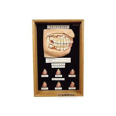 乳歯 と永久歯の模型