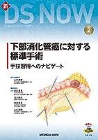 下部消化管癌に対する標準手術 (新DS NOW 2)