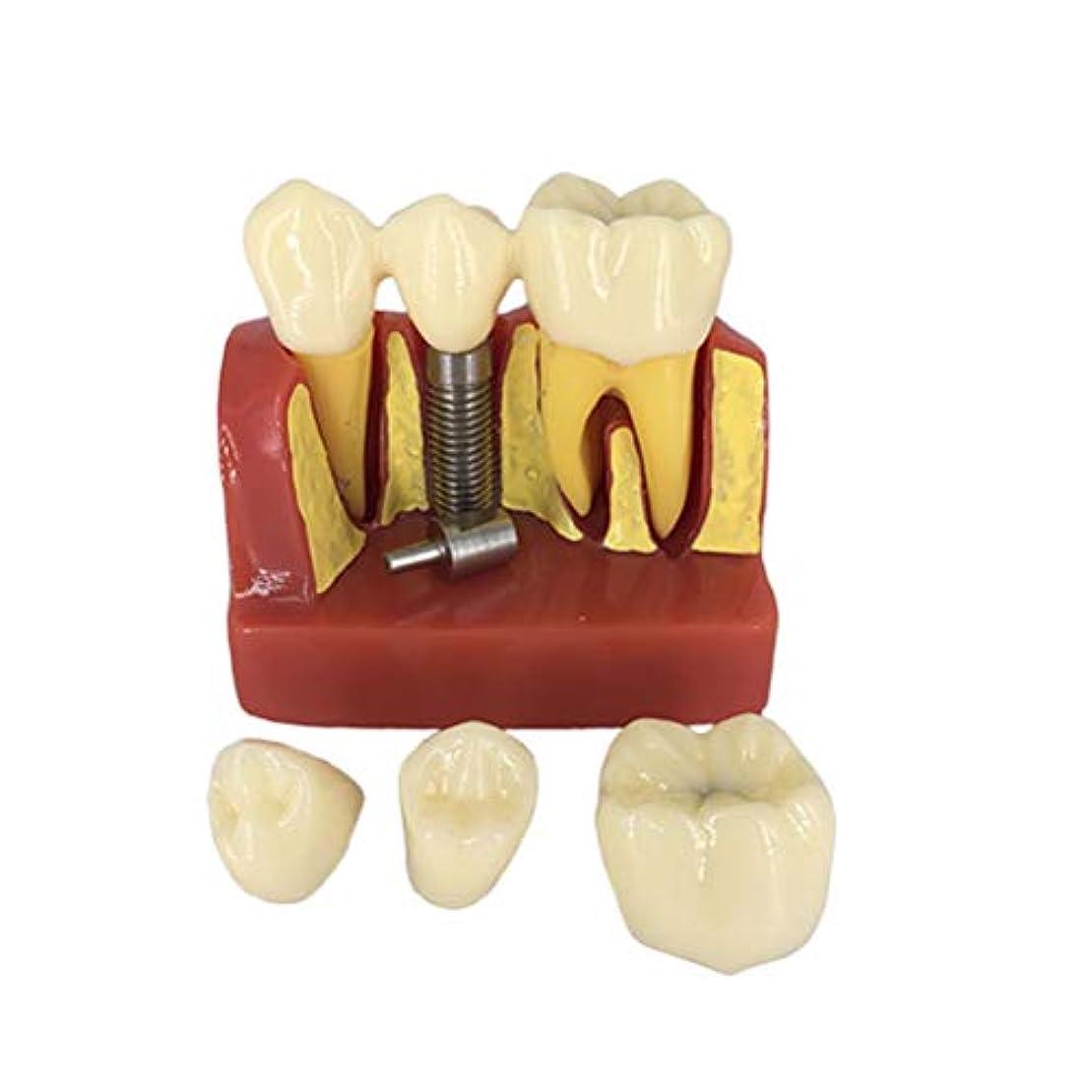タンクブランドサラミHEALIFTY デンタルデモンストレーション歯モデルデンタルモードを教える標準的な研究
