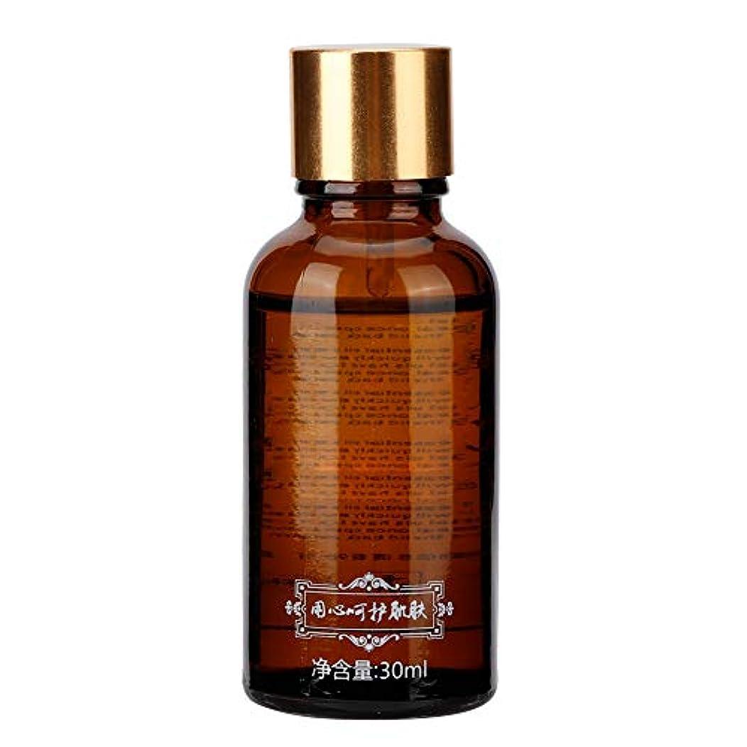 錆び高齢者中級エッセンシャルオイル30mlナチュラルローズエキスボディマッサージスキンケア保湿ボディマッサージ痛み不安緩和睡眠を改善