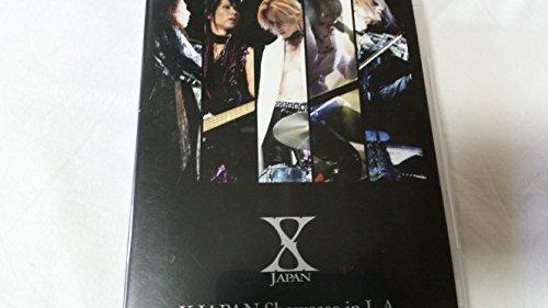 X JAPANのライブが熱かった!!チケット&公演情報を徹底解説!の画像