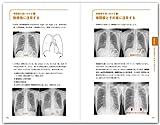 レジデントのためのやさしイイ呼吸器教室[ベストティーチャーに教わる全29章]改訂第3版 画像