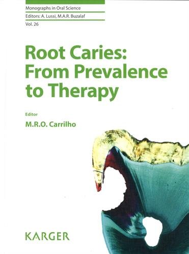 Download Root Caries: From Prevalence to Therapy (Monographs In Oral Science) 3318061123