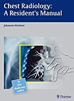 Chest Radiology: A Resident's Manual by Johannes Kirchner(2011-02-28)