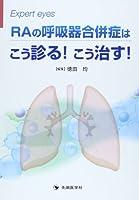 RAの呼吸器合併症はこう診る!こう治す! (Expert eyes)