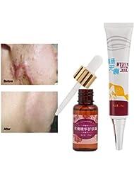 傷跡の除去、傷跡の傷跡の除去クリームと顔と体のための超輝く汚れのない油の傷跡除去
