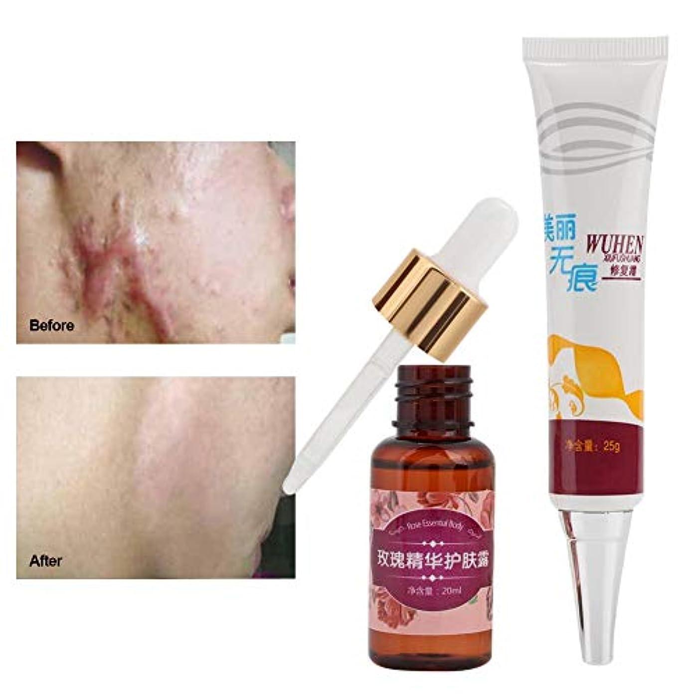 ポータブル磁気招待傷跡の除去、傷跡の傷跡の除去クリームと顔と体のための超輝く汚れのない油の傷跡除去