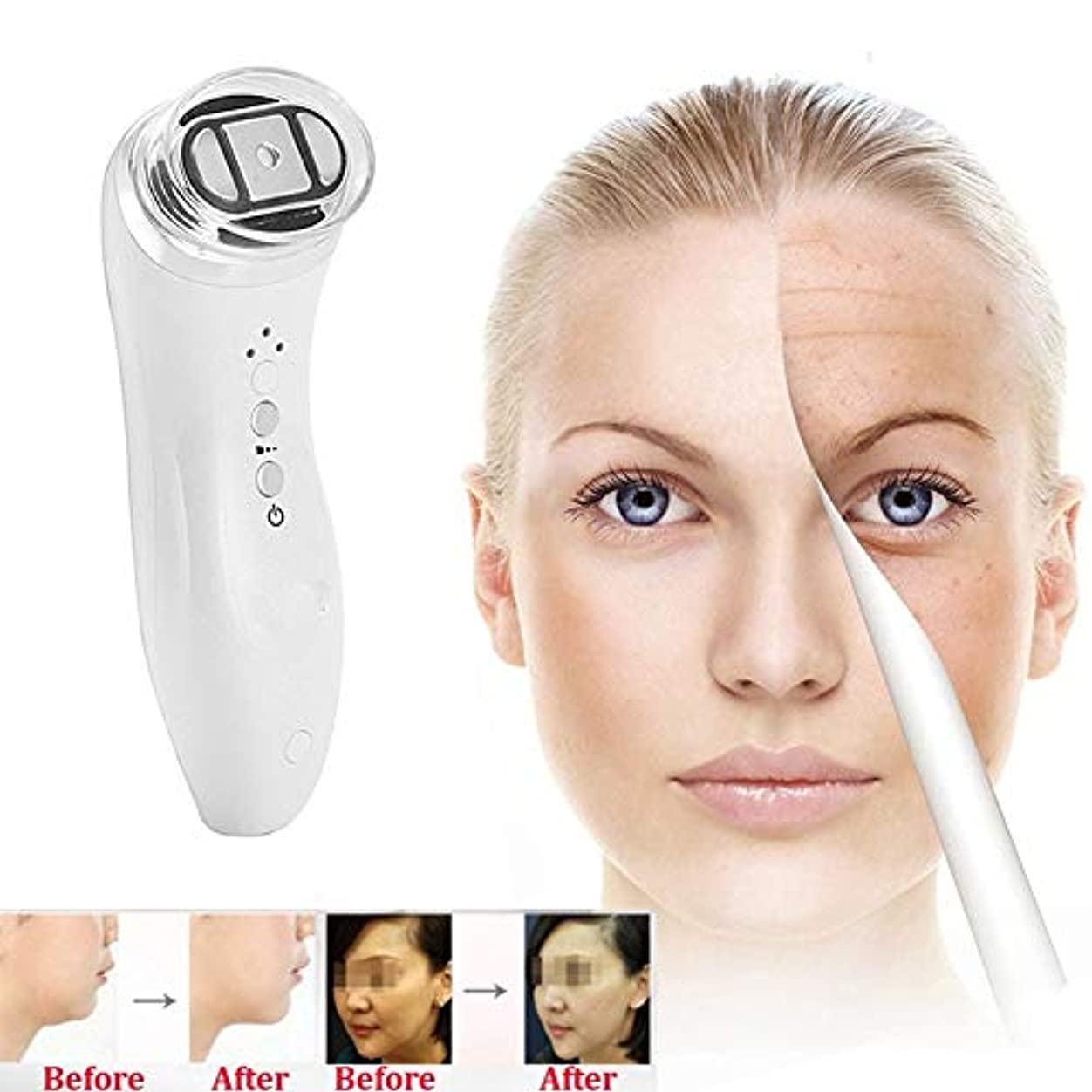 効能ある喜ぶヒギンズ頻度美顔術の機械、反老化のスキンケアをきつく締める皮の若返りのしわの取り外しの皮のための家の使用携帯用美顔術機械