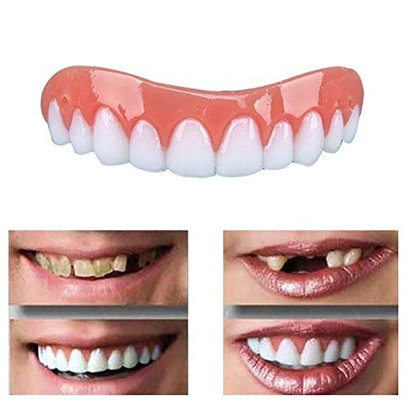 決定的バラエティ受け取るキットの歯セットの化粧品の上部のベニヤを白くする歯の微笑のベニヤのシリコーンの訂正