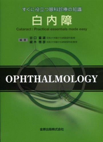 白内障 (すぐに役立つ眼科診療の知識)
