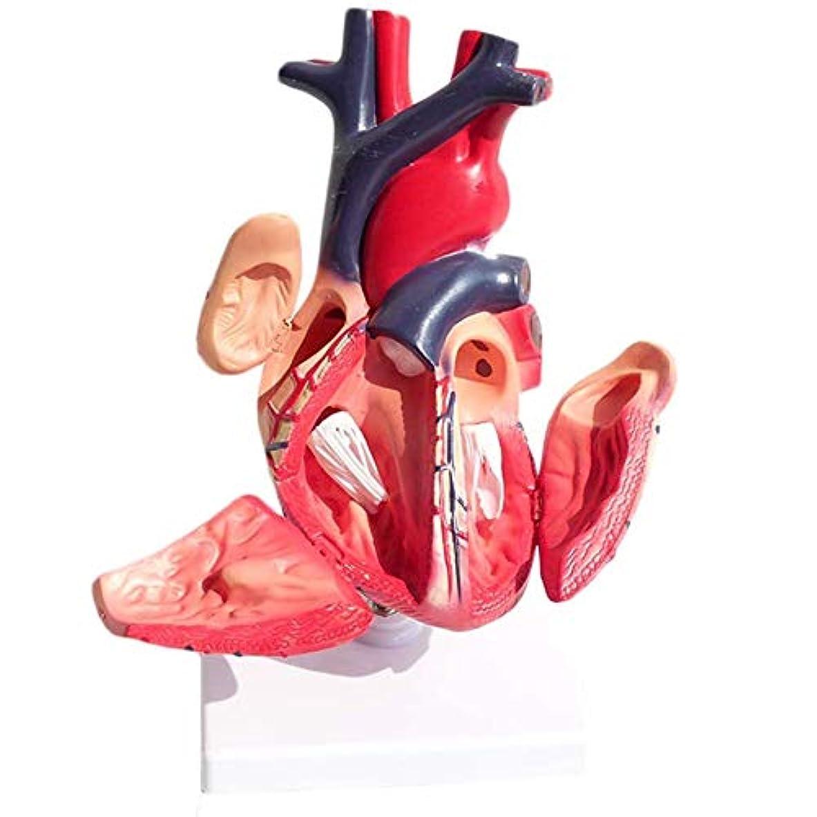 アルカトラズ島水っぽい突然医療解剖色のハートのモデル、内臓解剖心臓標本、医療循環器系内部教育モデル