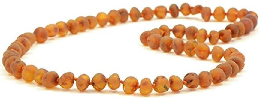 クライアント一人でかすかなRaw Amberネックレス大人用 – 18 – 21.6インチ – amberjewelry – Madeから未研磨/Authentic Baltic Amberビーズ 21.6 inches (55 cm) B01I3H5YY8