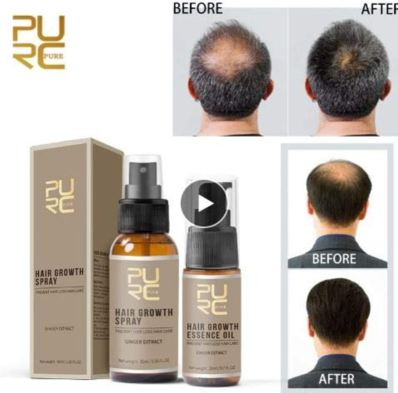 オーラル哲学冗長SET OF 2 - PURC Fast Growth and Care Hair Essence OIL + Hair Growth SPRAY - perfect hair care for Preventing Hair...