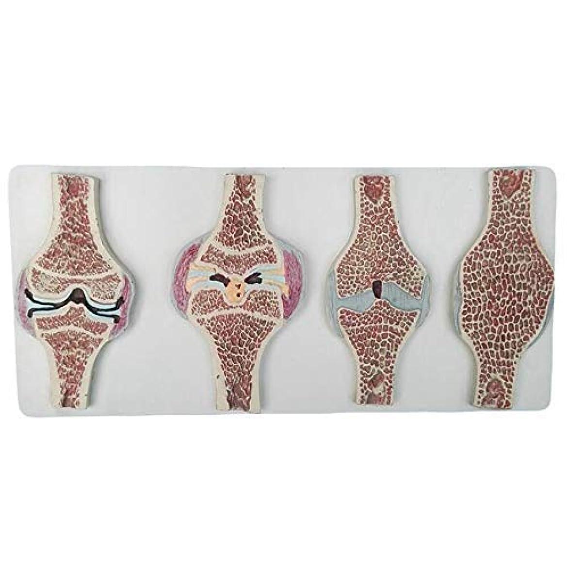 微弱歴史謝る教育モデル人間の膝関節断面解剖モデル人間の解剖学膝関節矢状断面モデル解剖学的人間の膝関節モデル比較モデル