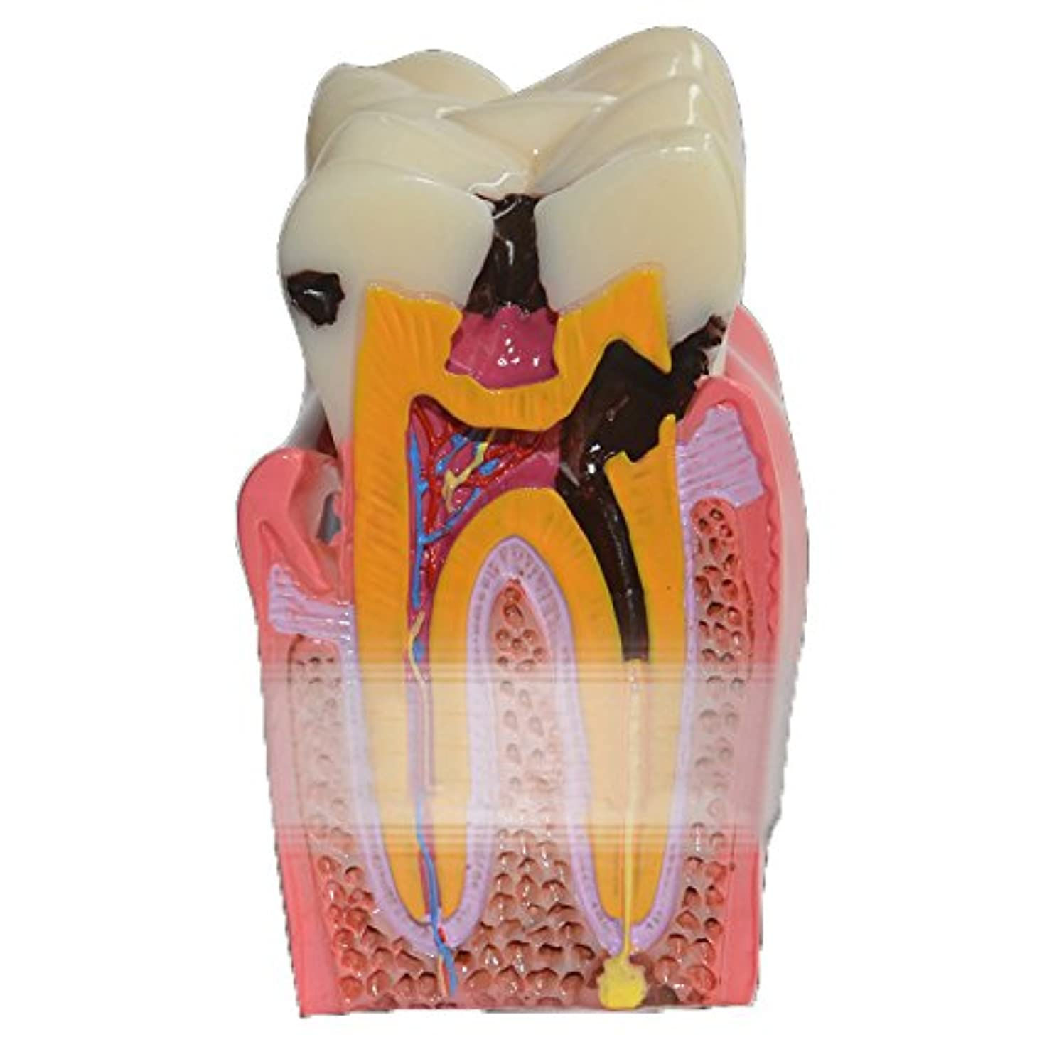 無関心バスサンドイッチGoDen大人と小児歯模型 解剖学的歯模型 教学用模型