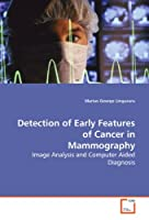 Detection of Early Features of Cancer in Mammography: Image Analysis and Computer Aided Diagnosis