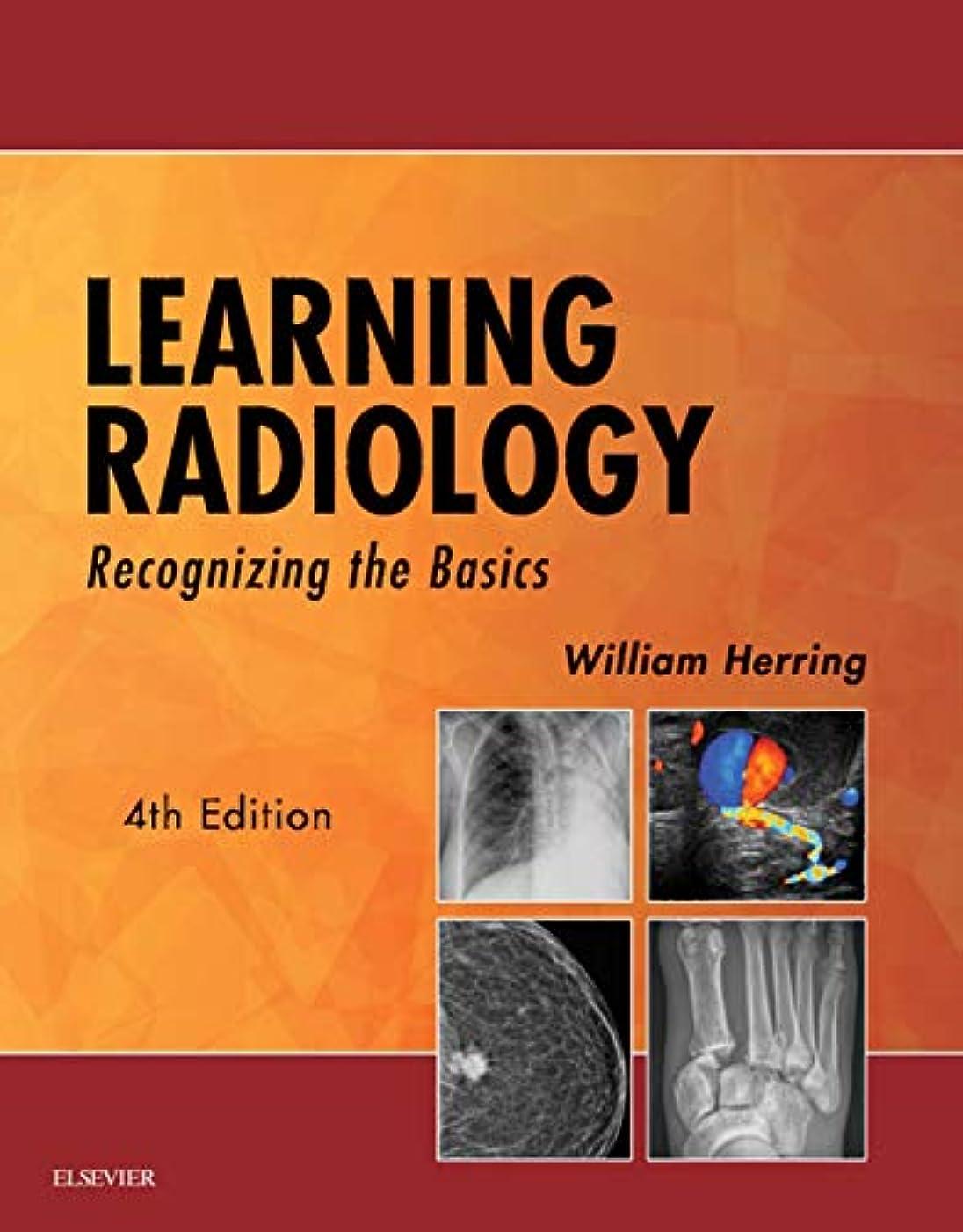 芝生バイバイエンジンLearning Radiology E-Book: Recognizing the Basics (English Edition)