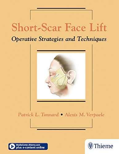 Short-Scar Face Lift: Operative Strategies and Techniques (English Edition)