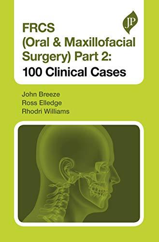 Download FRCS (Oral & Maxillofacial Surgery) Part 2: 100 Clinical Cases 1909836834
