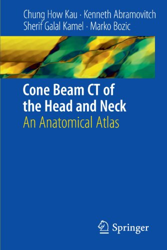 Download Cone Beam CT of the Head and Neck: An Anatomical Atlas 3642127037