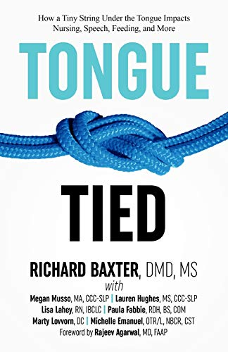 Download Tongue-Tied: How a Tiny String Under the Tongue Impacts Nursing, Speech, Feeding, and More 1732508208