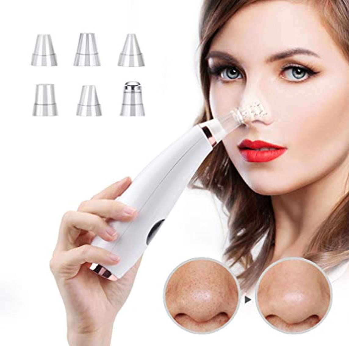高度な対処する取り出す6に1ブラックヘッドリムーバー真空ツール美容顔とスキンケアにきび治療ツール用男性女性顔クリーナー吸引電気デバイス