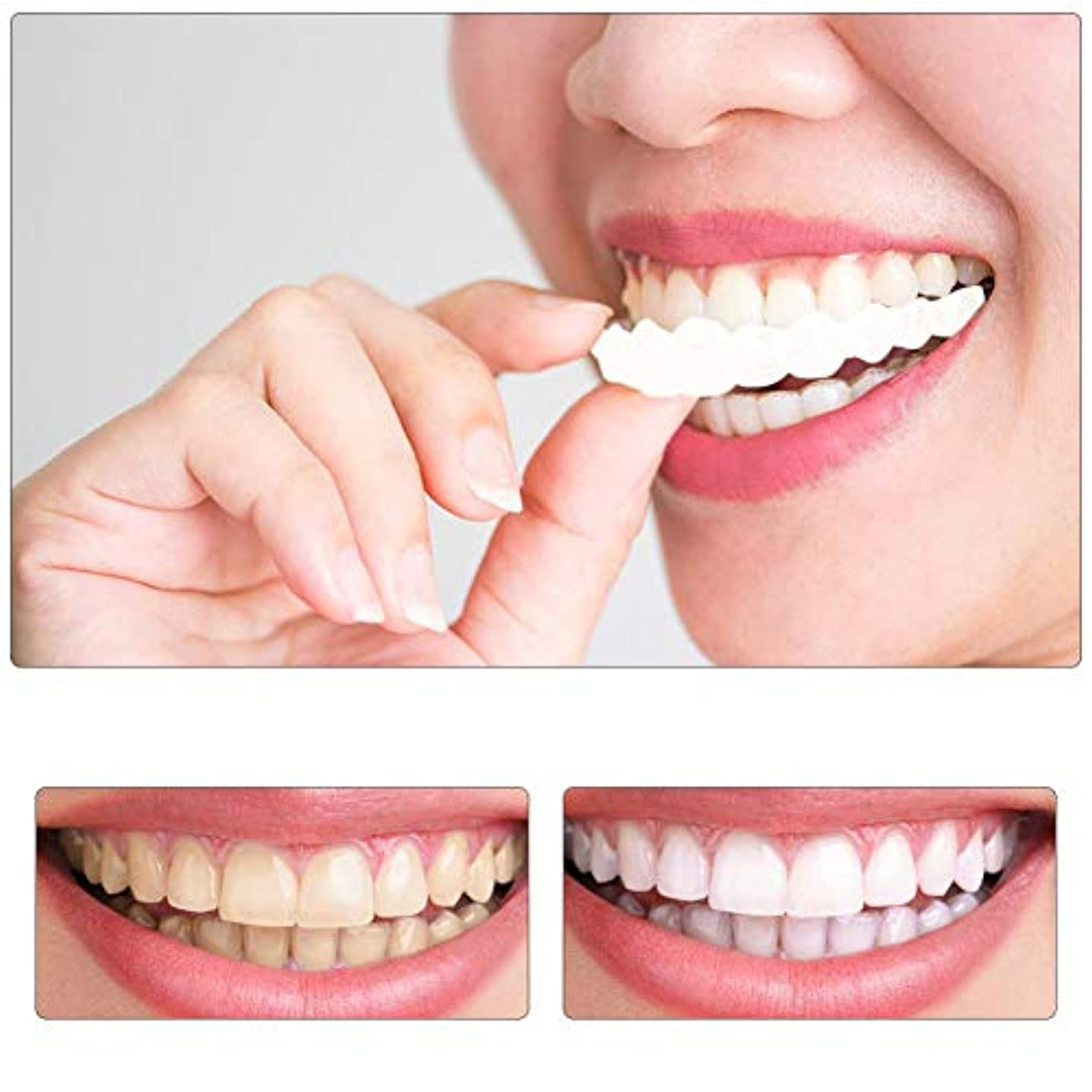 式モードギャング2組の一時的な化粧品の歯入れ歯の歯の化粧品のシミュレーションのブレースの上部のブレース+下部のブレース、瞬時に快適な柔らかい完璧なベニヤ