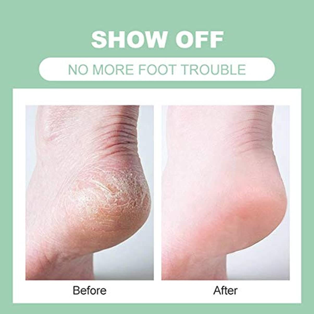 ボランティア反射ビタミンフットクリーム 足クリーム 足ケア 乾燥 荒れ防止 長持ち 保湿 つるつる うっとりするくりーむ Cutelove