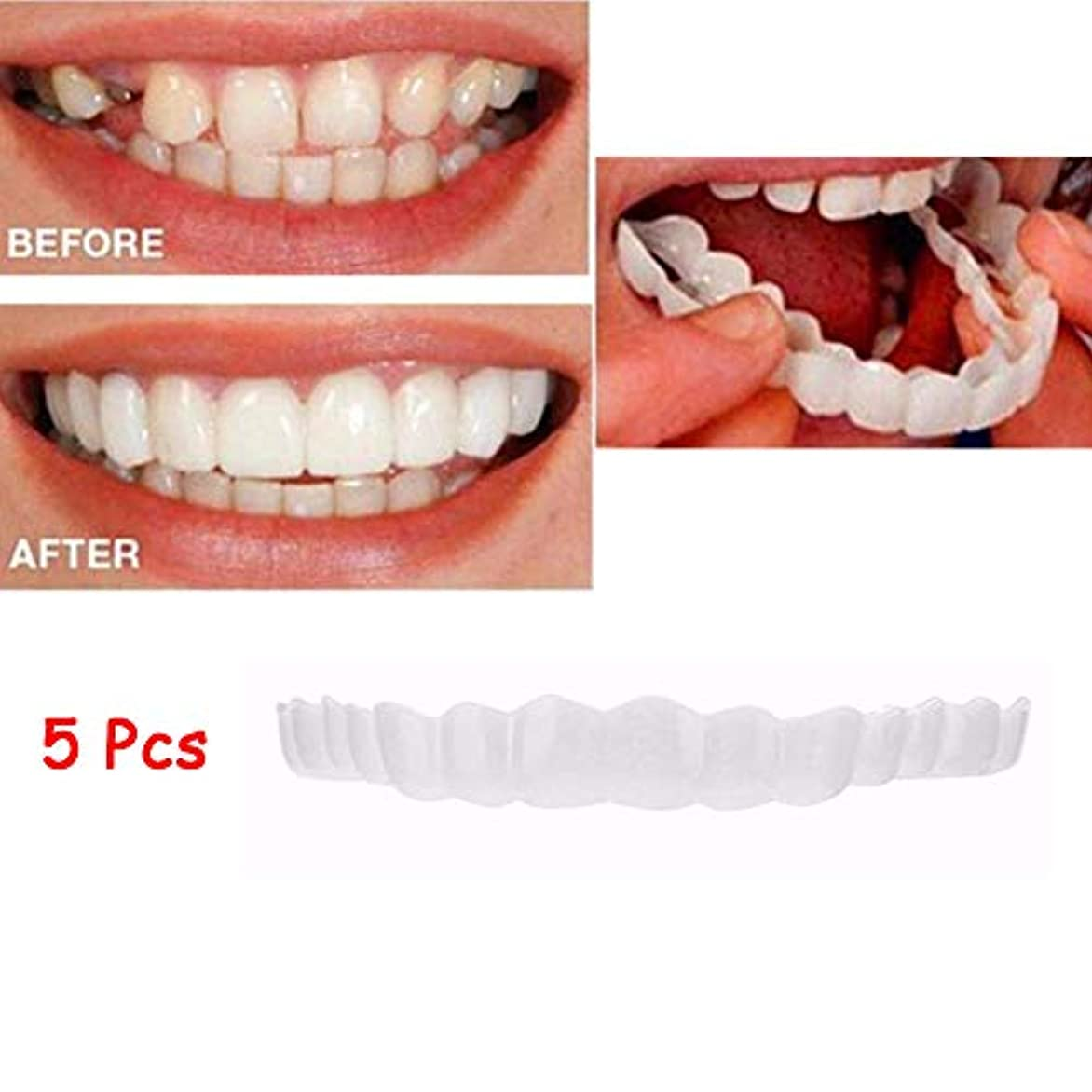 でも憧れ月5本突き板、化粧品の歯 - 一時的な笑顔の快適さフィットフレックス化粧品の歯ワンサイズは最も快適な歯のベニーにフィット