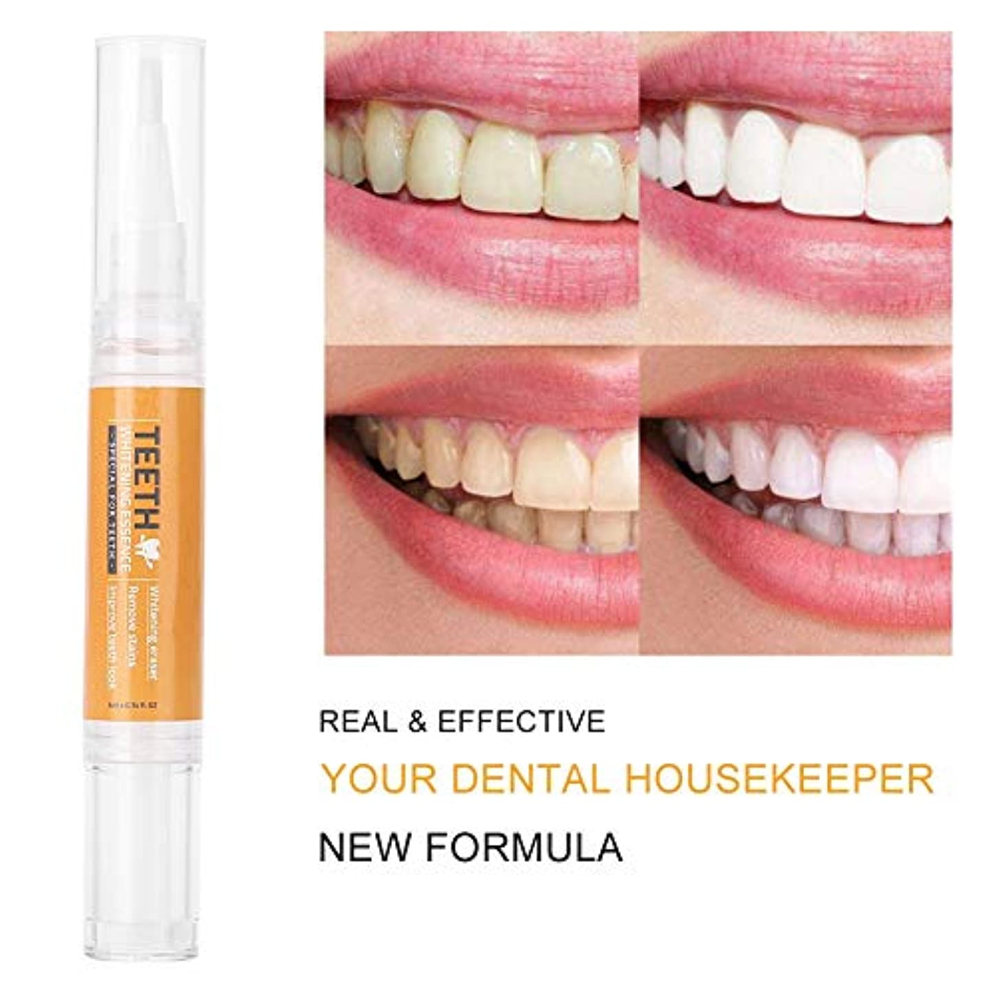 受け入れリフレッシュクラブ歯のホワイトニングペン 歯磨きペン 歯汚れ除去歯を白く 美白効果 歯のケアツール