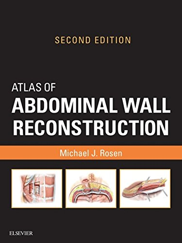 Atlas of Abdominal Wall Reconstruction (English Edition)