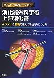 ビジュアルサージカル 消化器外科手術 上部消化管