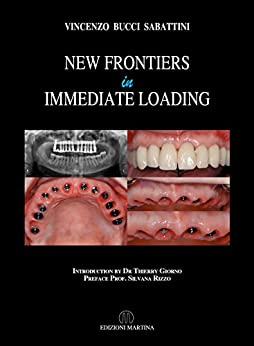 New Frontiers In Immediate Loading by [Bucci Sabattini, Vincenzo]