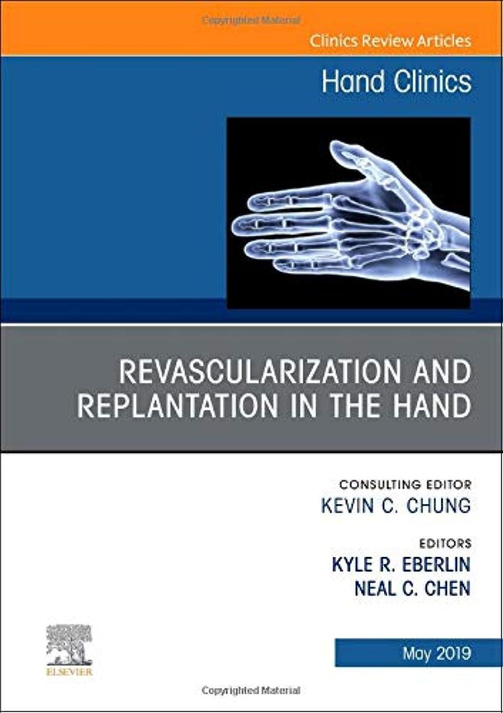 メキシコ無視する負担Revascularization and Replantation in the Hand, An Issue of Hand Clinics, 1e (The Clinics: Orthopedics)