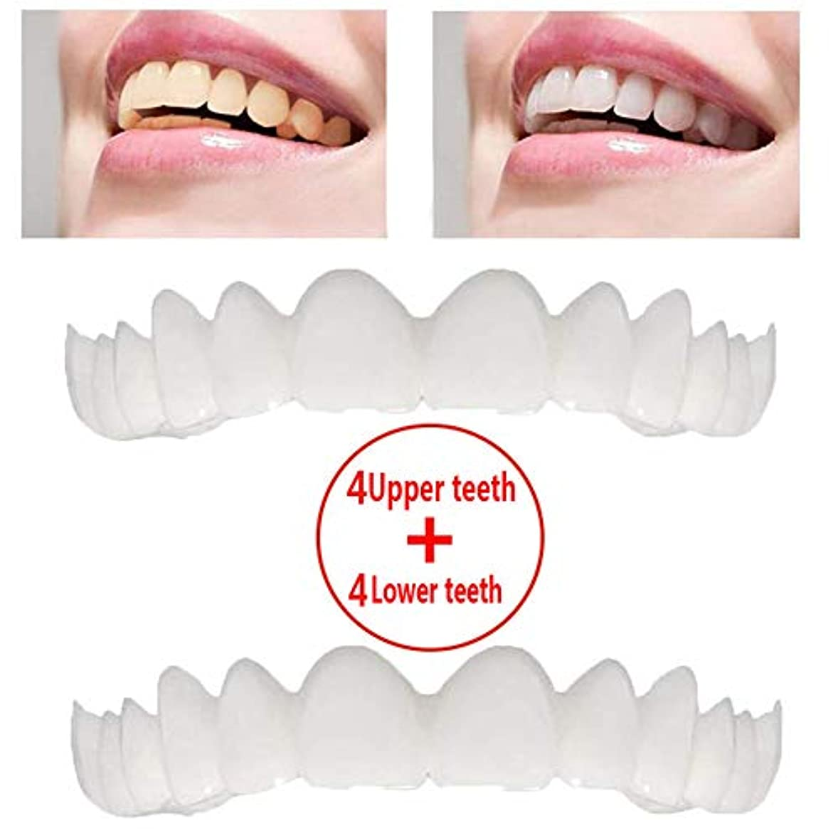 個人的に肯定的ルーキー4組の一時的な化粧品の歯の義歯の微笑の慰めの適合の屈曲の化粧品の歯はブレースを模倣しました