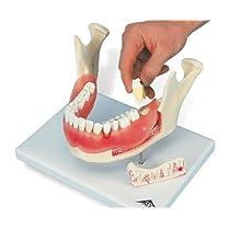 3B社 歯・口腔模型 歯と歯茎の疾患モデル (d26)