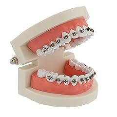歯科模型5006 歯列模型 メタルブラケット装置模型 180度開閉式 上下額 歯磨き指導用 矯正歯科用 治療説明用 白 …