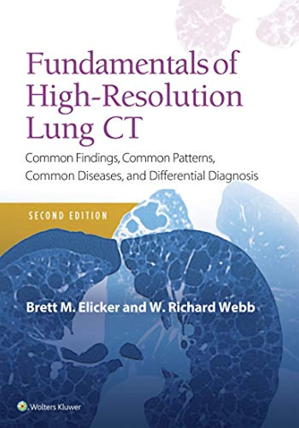 喜ぶ鋼ポルティコFundamentals of High-Resolution Lung CT: Common Findings, Common Patterns, Common Diseases and Differential Diagnosis (Pocket Notebook) (English Edition)