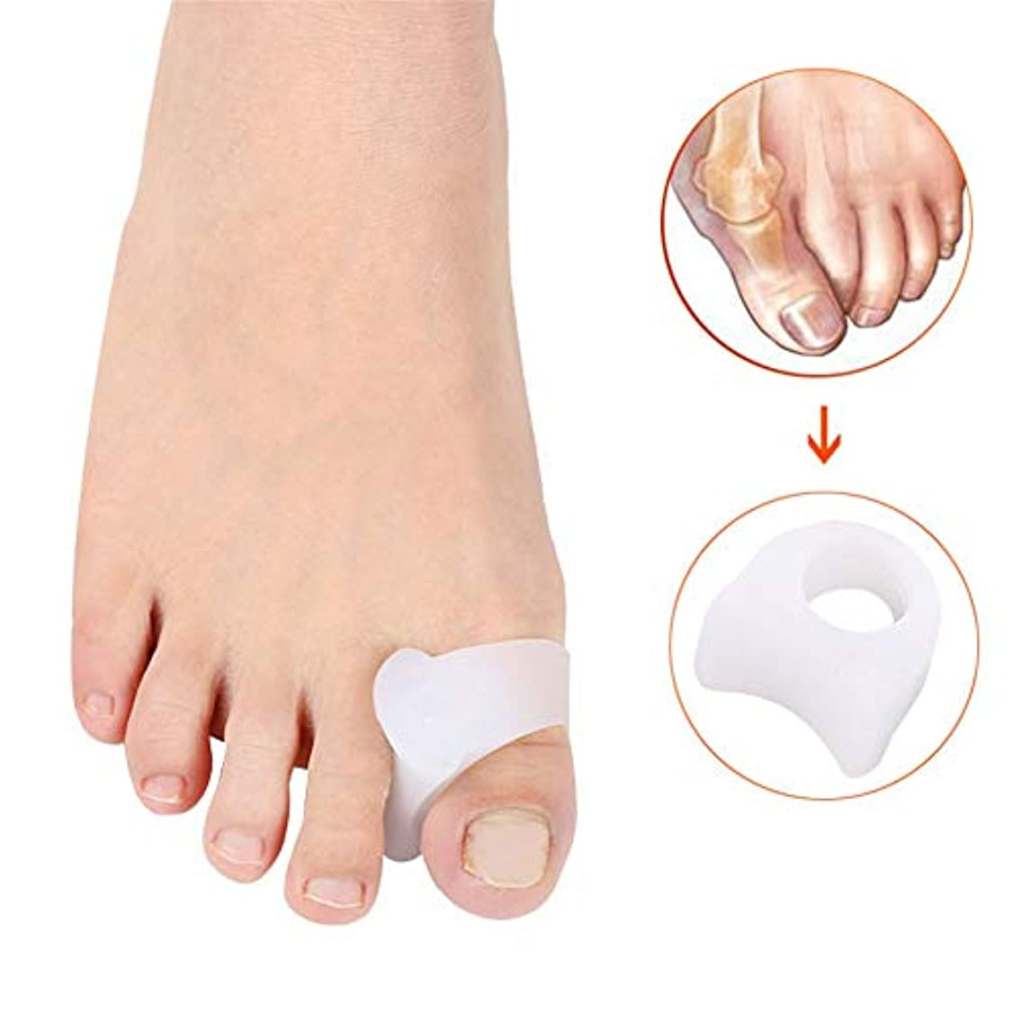 床チョップパース外反母趾のサポート 足のセパレータBunion Correctors Gel Toe SpacersハヌーValgusハンマートウオーバーラップトゥー 足の内側の痛みや腱膜を和らげる (サイズ : L)