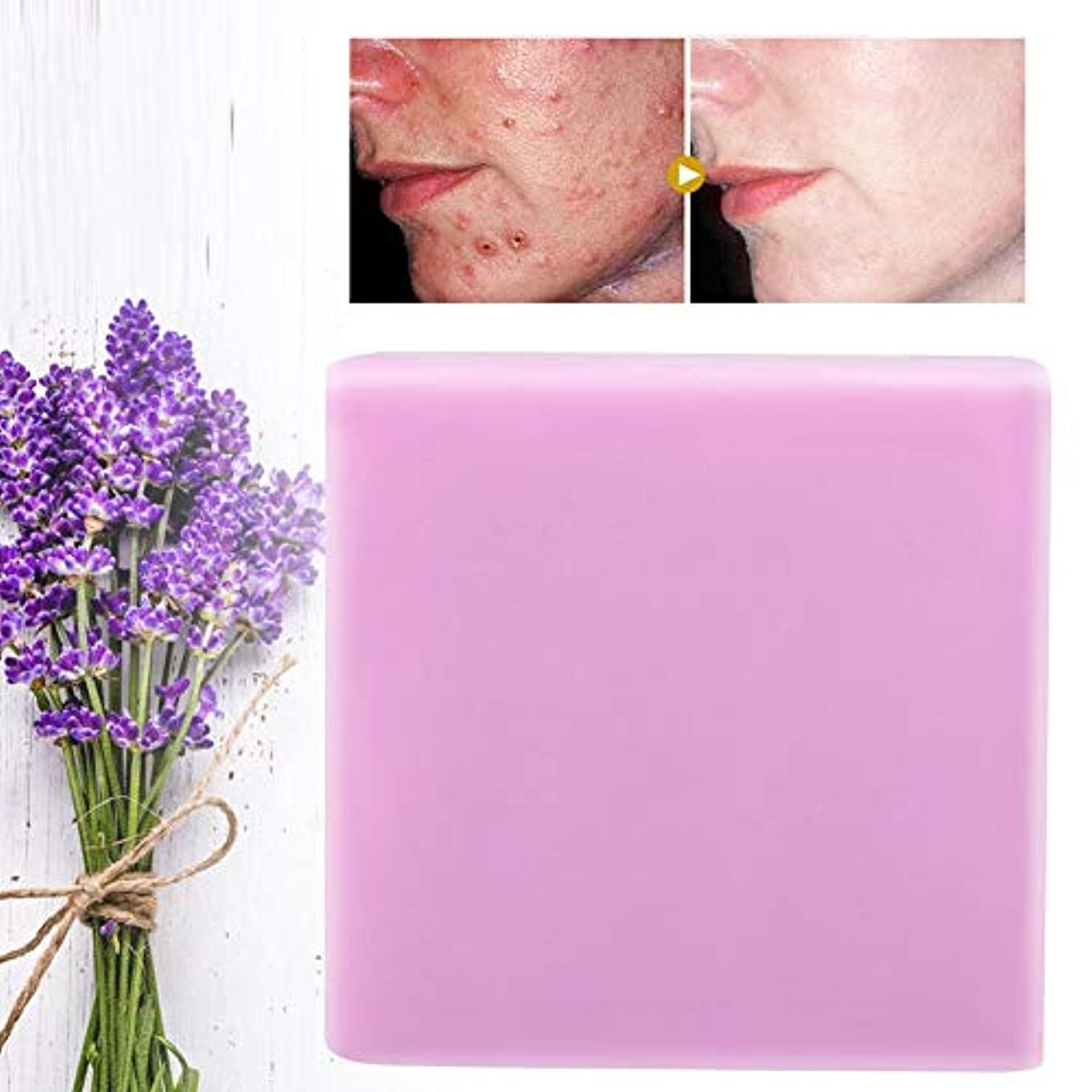 紫の悪の下ラベンダーハンドメイドソープフェイスクリーンモイスチャライジングフェードにきび傷跡スキンケア100g
