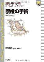 腰椎の手術 (整形外科手術イラストレイテッド(DVD付))