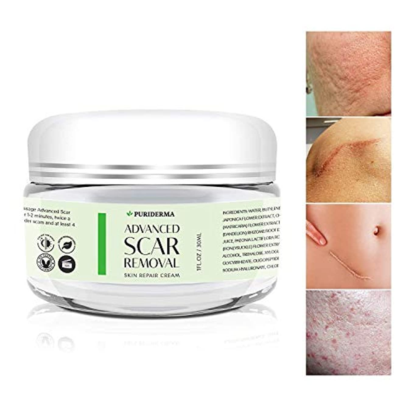 ボタン人道的知恵Puriderma 社 の Advanced Scar Removal Cream (30 ml) 妊娠線 や 傷跡 修復に Advanced Treatment for Face & Body, Old & New Scars...